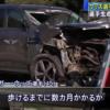 韓国ジェネシスGV80にて運転→速度超過にて事故→脚が重傷化したタイガー・ウッズ氏の手